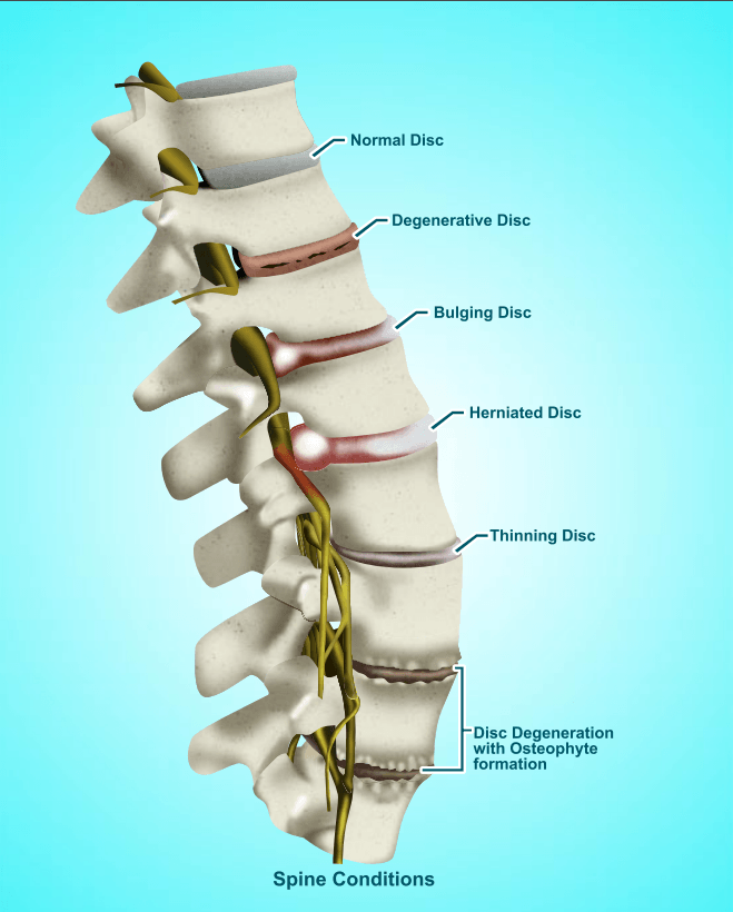 Nonsurgical Spinal