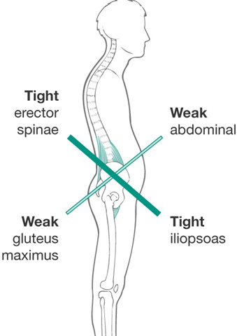If you Sit at a Desk, You Probably Have Lower Crossed Syndrome